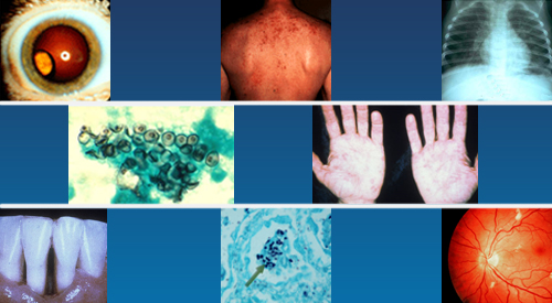 Images of symptoms of HIV infection