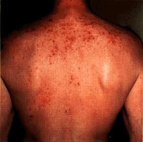 image of Staphylococcal folliculitis