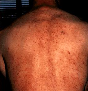 Hiv Aids Dermatological Images Hiv Aids