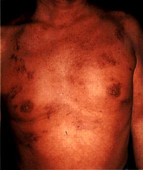 image of Kaposi sarcoma: trunk