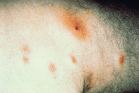 image of Staphylococcal furuncles