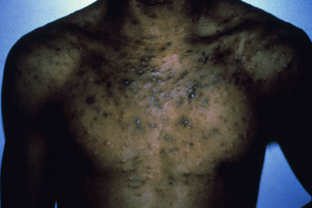 image of Eosinophilic folliculitis
