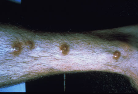 image of Flea bites