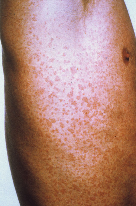 image of Drug rash: caused by trimethroprim-sulfamethoxazole (Septra, Bactrim)