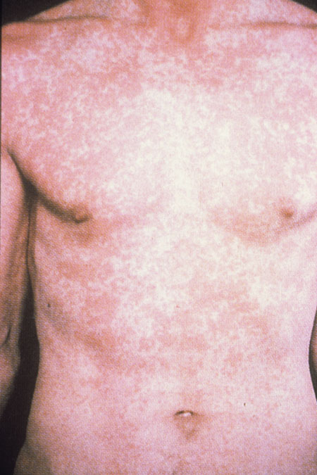 image of Drug rash