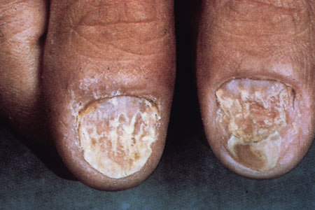 image of Psoriasis: nail changes