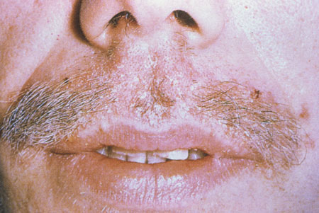 image of Seborrheic dermatitis