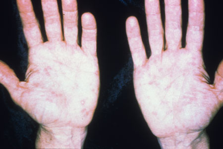 image of Secondary syphilis: palmar rash