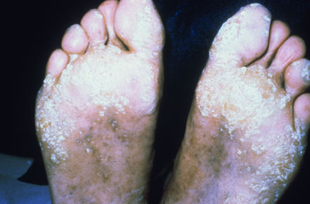 image of Warts