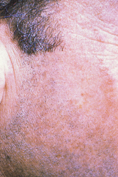image of Dermatophyte: face