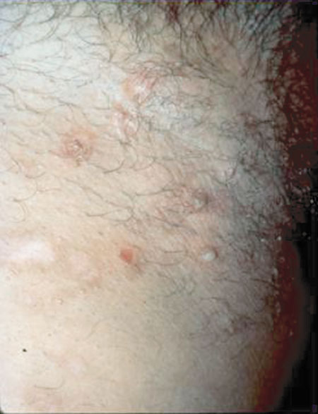 image of Staphylococcal infection: occurring as abscesses