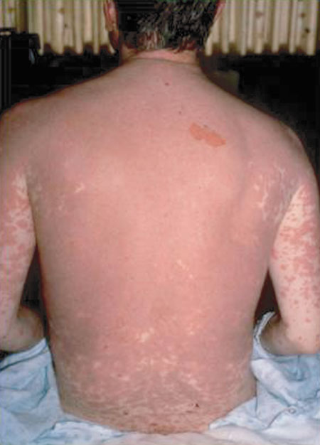 image of Drug reaction: producing full-body erythema