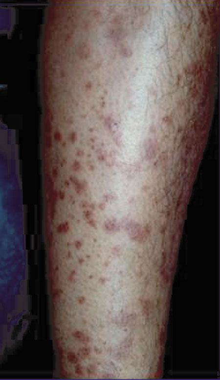 image of Lichen planus: associated with HIV and hepatitis C virus coinfection