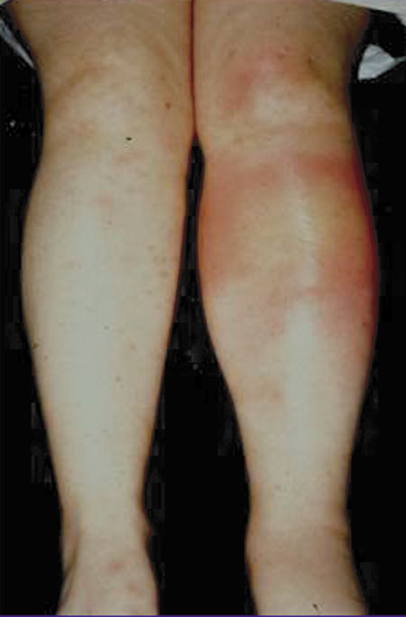 image of Erythema nodosum