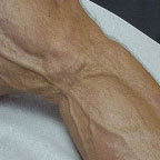 thumbnail image of Lipoatrophy: fat depletion of leg