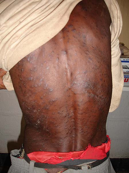 image of Cutaneous manifestations on the back of an HIV-infected man