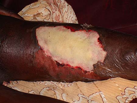 image of Necrotizing fasciitis: in a 35-year-old HIV-infected woman