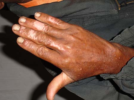 image of Depigmentation (spontaneous): on the fingers of an HIV-infected man