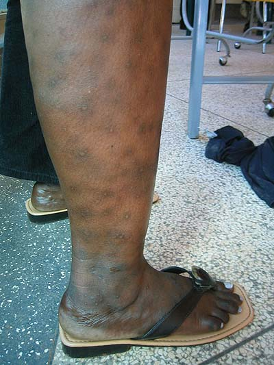 image of Pruritic papular eruption: right lower extremity