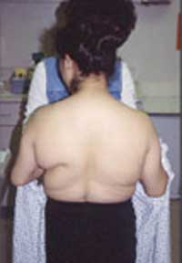 image of Lipodystrophy syndrome (metabolic syndrome)