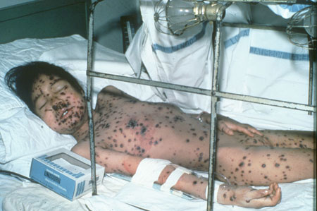 image of Varicella-zoster: hemorrhagic infection