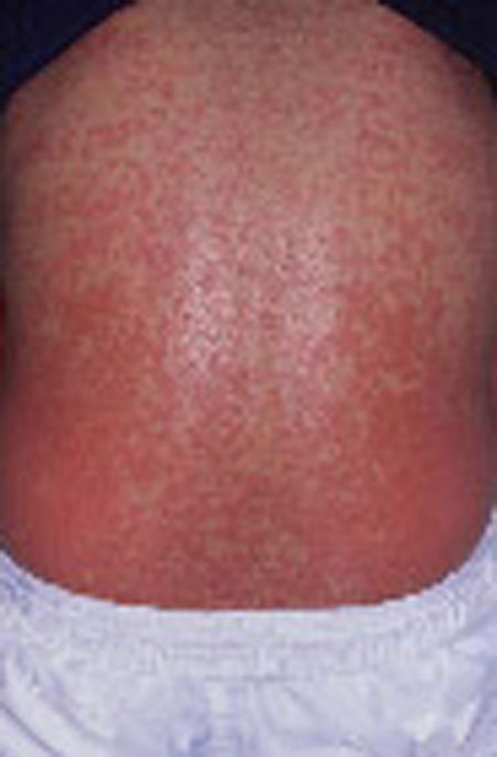 image of Drug rash: nonnucleoside reverse transcriptase inhibitor associated