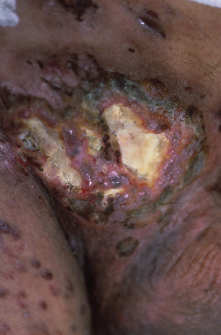 image of Non-Hodgkin lymphoma: arising from Kaposi sarcoma