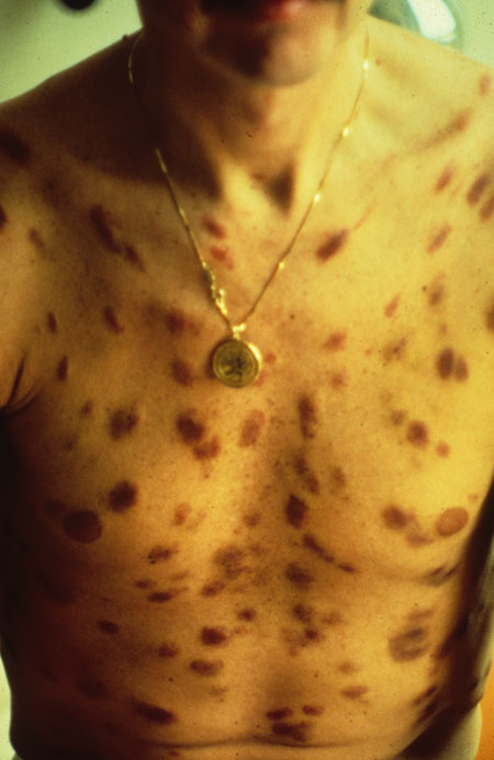 image of Kaposi sarcoma: chest
