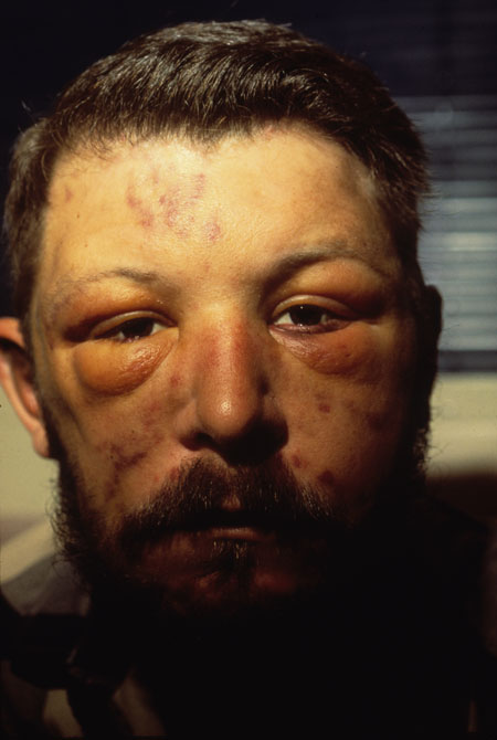 image of Kaposi sarcoma: facial edema