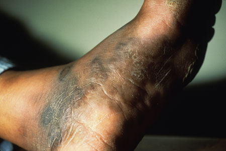 image of Kaposi sarcoma: foot