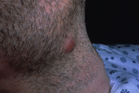 image of Kaposi sarcoma: submandibular/cervical nodule