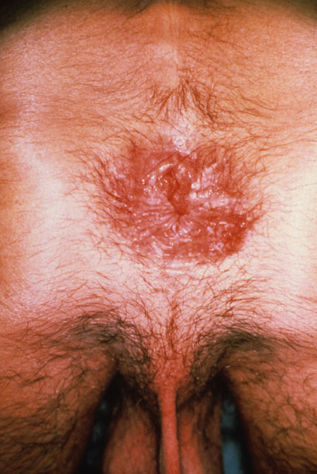 image of Herpes simplex: perianal