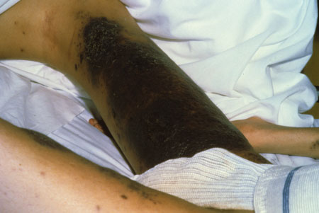 image of Kaposi sarcoma: legs