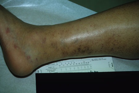 image of Kaposi sarcoma: lesions after treatment