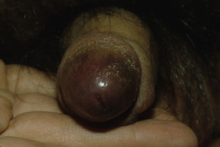 image of Kaposi sarcoma: penis