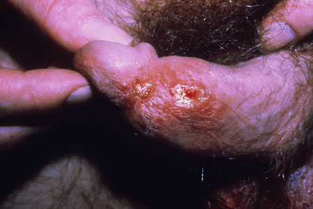 Vagania Photo http://www.hiv.va.gov/provider/image-library/herpes-simplex.asp?post=1&slide=229