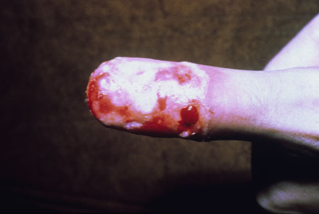 image of Herpetic whitlow