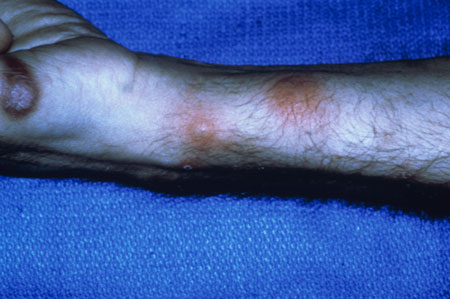 image of Kaposi sarcoma: with staphylococcal abscesses