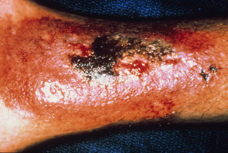image of Kaposi sarcoma