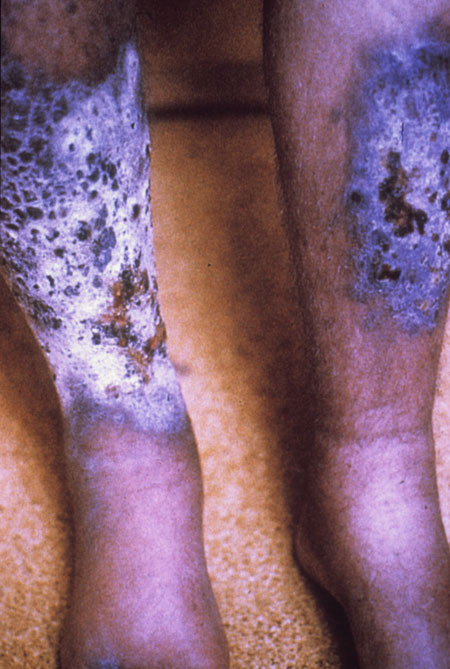 image of Kaposi sarcoma: on bilateral shins
