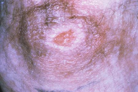 Hiv Aids Dermatological Images Hiv