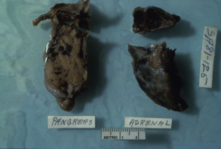 image of Kaposi sarcoma: pancreas and adrenal glands at autopsy