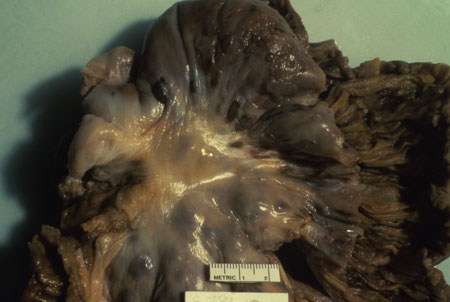 image of Kaposi sarcoma: small bowel at autopsy