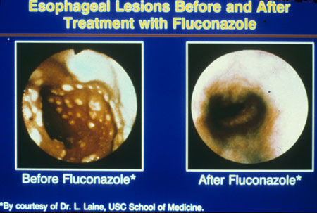 image of Candidal esophagitis: lesions before and after treatment with fluconazole