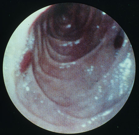 image of Kaposi sarcoma: gastrointestinal lesion seen on endoscopy