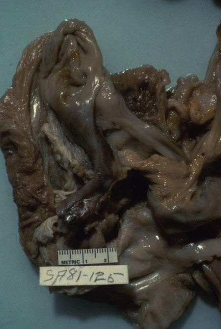 image of Kaposi sarcoma: appendix at autopsy