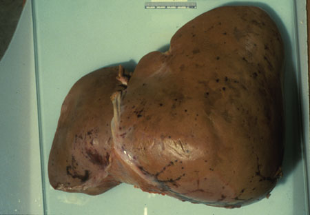 image of Kaposi sarcoma: liver at autopsy