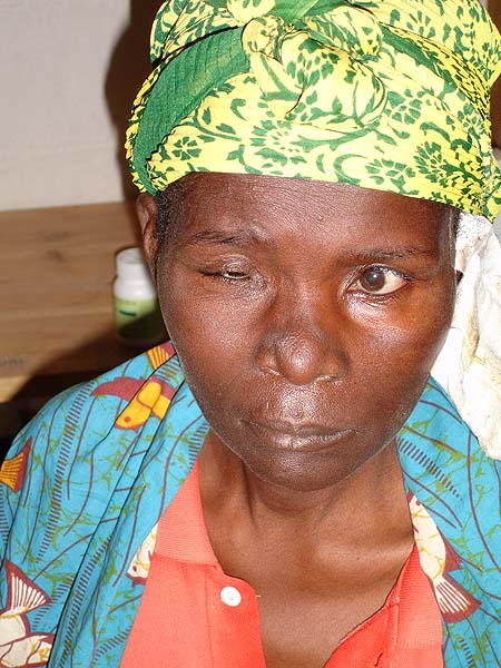 image of Facial palsy: left side of an HIV-infected woman