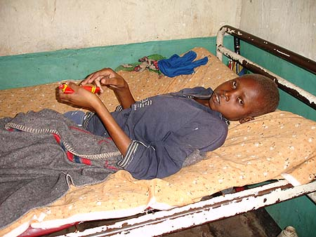 image of Malnutrition: severe, in a 19-year-old boy
