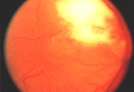 image of Toxoplasmic retinochoroiditis